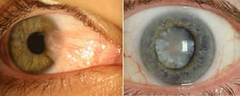 Left: Eyes with Pterygium, on the right a Cateract caused by long term over exposure to UV radiation